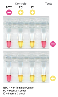 SARS CoV 2 Rapid Colorimetric LAMP Assay Kit BIOKÉ
